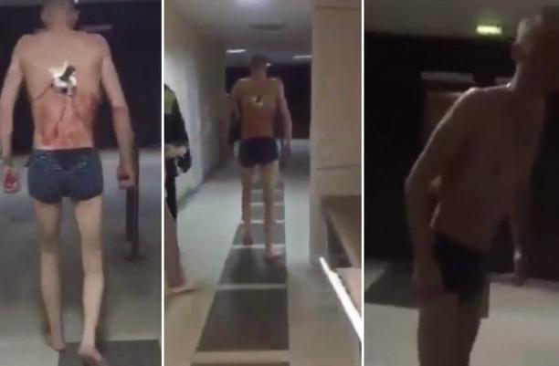 Chocante: paciente sai para fumar de cueca em frio de -10°C com faca nas costas