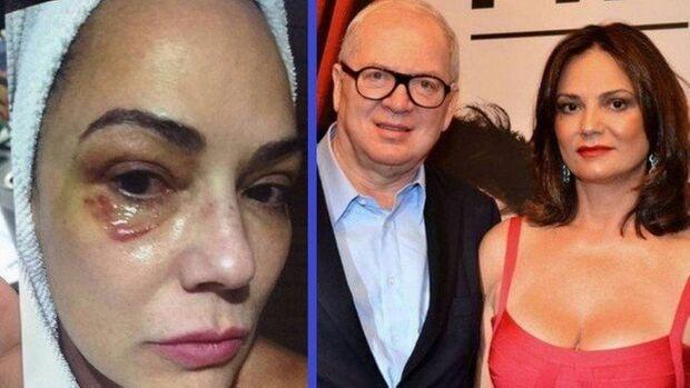 Justiça condena Lírio Parisotto por agressão à ex-mulher Luiza Brunet