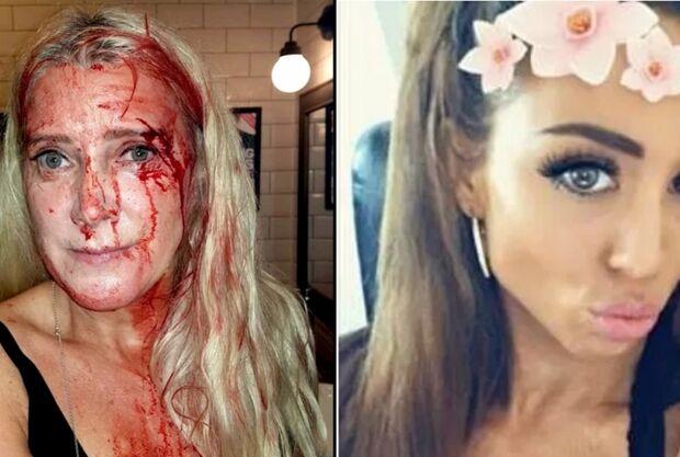 Mulher ataca rival com salto do sapato e vítima quase fica cega