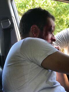 Motorista é agredido até a inconsciência em Campo Grande; quatro suspeitos são presos