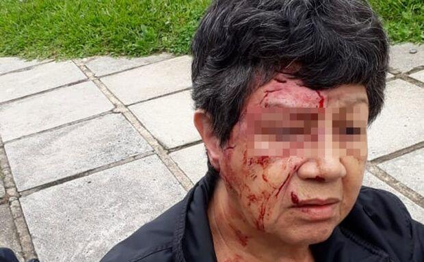 VÍDEO: PMs atiram e salvam idosa atacada por pitbull e rottweiler