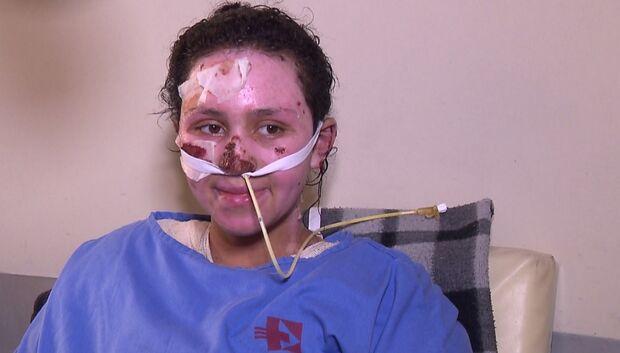 Menina que teve 60% do corpo queimado ao salvar irmão de incêndio morre no hospital