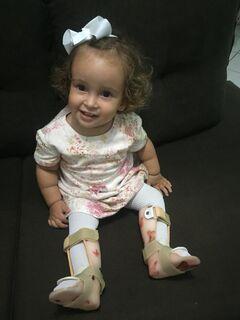 Guerreira, com apenas 1 ano, Maria já passou por 7 cirurgias e família pede ajuda