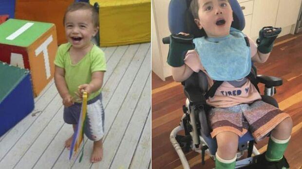Bebê fica paraplégico e com dano cerebral após comer maçã