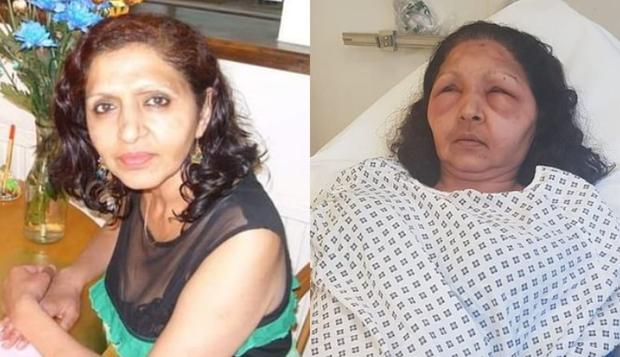 Mulher fica cega temporariamente após reação alérgica à tintura de cabelo