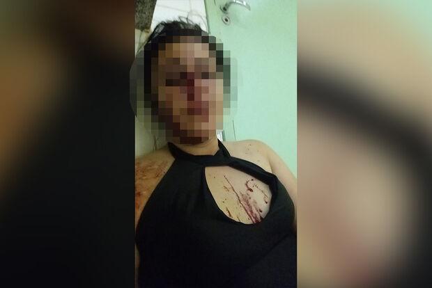 VÍDEO: vizinhos flagram homem espancando ex-esposa nas Moreninhas