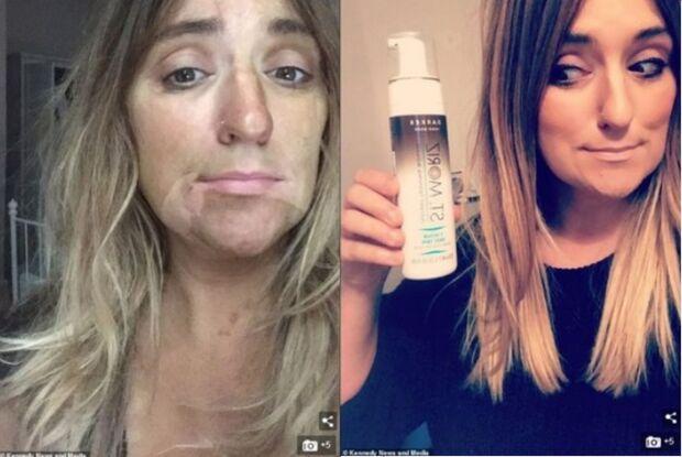 Cantora faz bronzeamento artificial em casa e acorda com rosto manchado