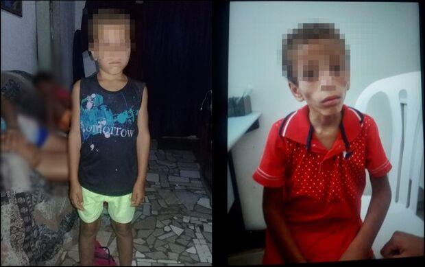 VIOLÊNCIA: criança de 7 anos é internada com queimaduras de vela e desnutrição