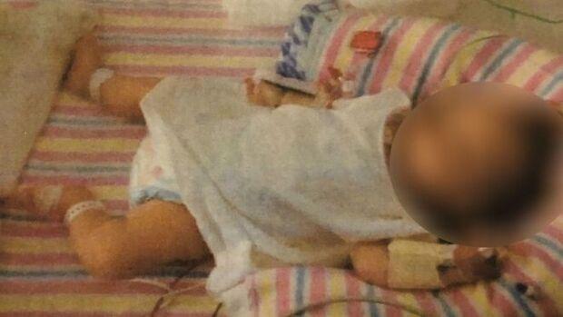 Casal é condenado por desnutrição de bebê com dieta vegana extrema