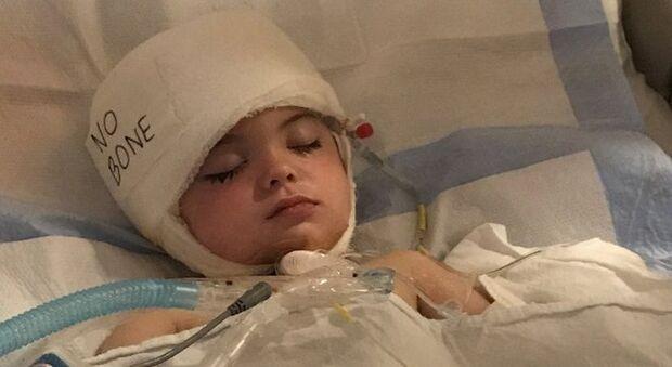 Menino que sofreu um aneurisma aos 3 anos e  perdeu 40% do crânio volta à escola