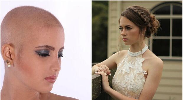 Noiva pede que madrinha com câncer compre peruca para festa