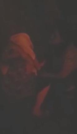 Menino cai sobre tampa de bueiro danificado e fica com ferro cravado na perna