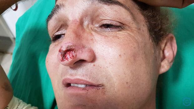 Ex-namorado arranca pedaço de nariz e quebra dentes de ativista transexual