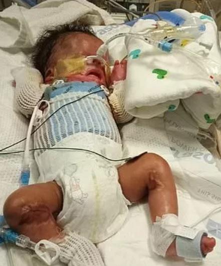Bebê com condição rara recebe pele cultivada em laboratório