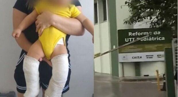 Padrasto é preso por quebrar duas pernas de bebê; mãe achou que criança tinha 'ossos de vidro'