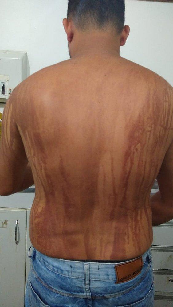 Homem relata incômodo após banho de mar na Bahia: queimando muito