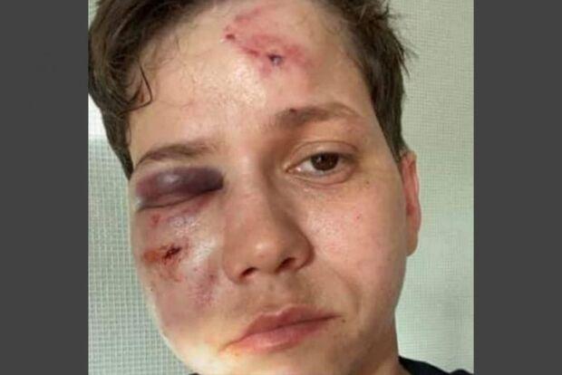 Youtuber Karol Eller é vítima de ataque no RJ