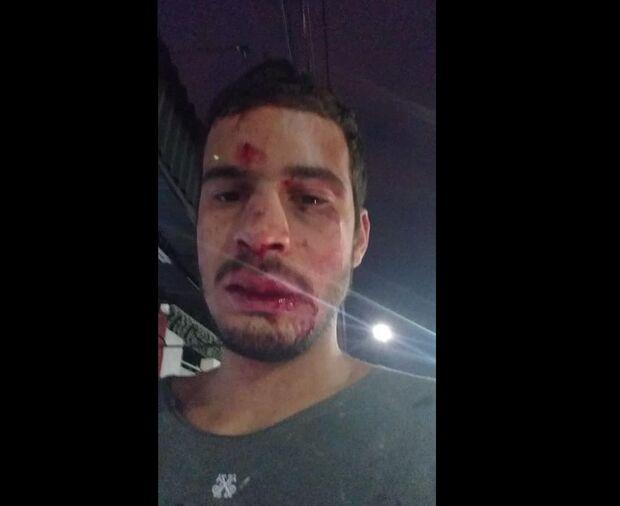 Motorista de aplicativo que apanhou de passageiros bêbados teve 6 dentes quebrados