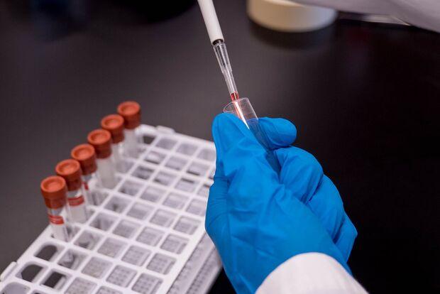 Estudos de vacina para covid têm bons resultados, mas resistência a gripe comum pode ser empecilho