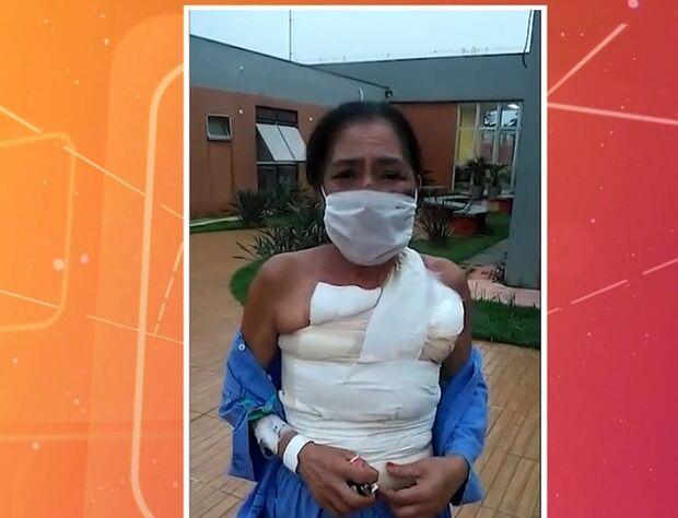 Mulher que teve corpo queimado pelo marido diz que cansou de sofrer e denunciou caso