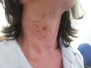 Professora é agredida por mãe e avó de aluna no sul de Santa Catarina